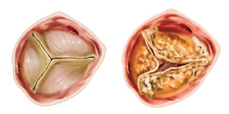 Normal aortic valve (left) and stenotic valve (right)